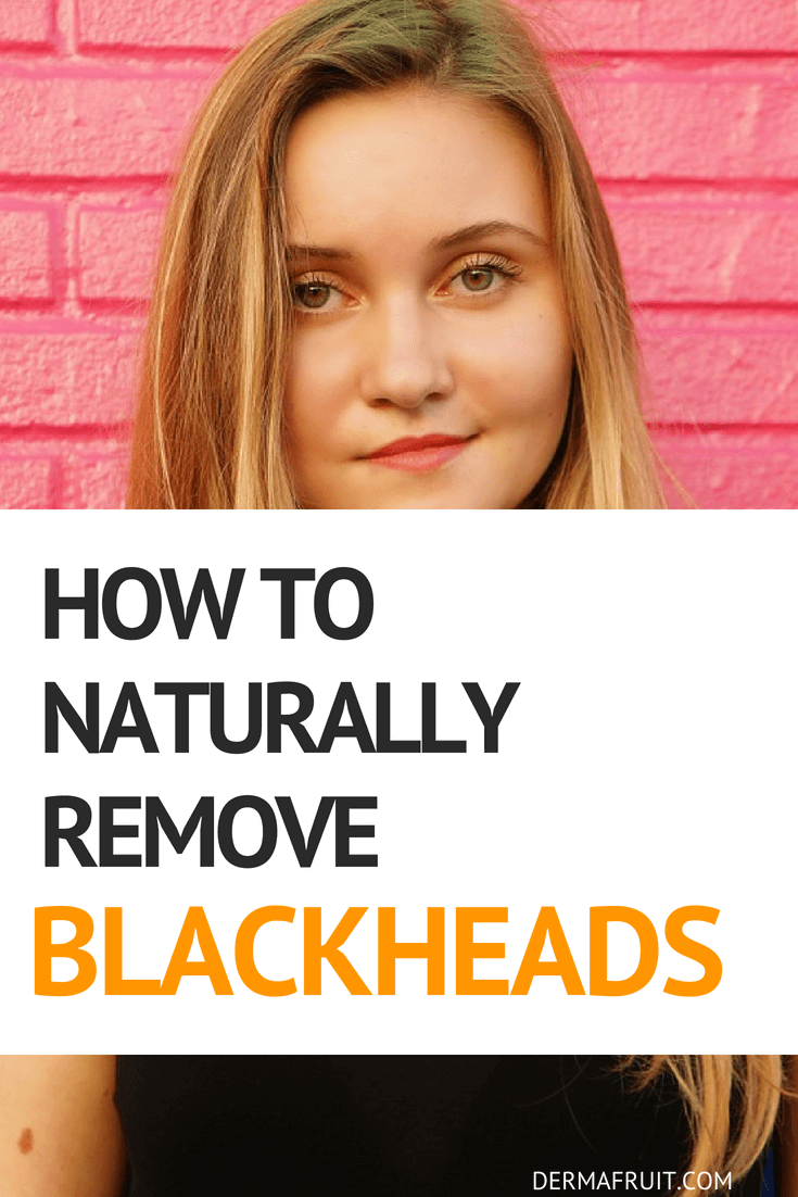 Many Causes And A Natural Treatment For Blackheads